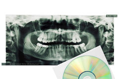 X-ray printed photo of teeth and digital disk. Royalty Free Stock Photography