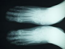 X RAY RADIOGRAPHY. Of feet royalty free stock photography