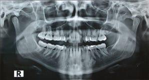 X ray recht van de panorama het tandkaak stock afbeeldingen