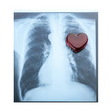 X-ray red heart of human on white background. Royalty Free Stock Images