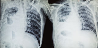 x-ray results in hospital Stock Image