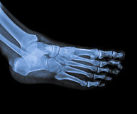 X Ray of right foot from lateral aspect. Royalty Free Stock Images