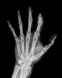 X-Ray. Of right hand Stock Photography