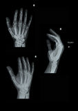 X-Ray Right Hand Set Stock Photography