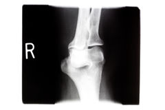X ray  Right Knee Stock Photography