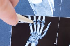 X-ray scan of hand, bones and finger joints. Doctor pointed on finger small joints, where pathology is detected, such as arthritis. Rheumatoid,fracture royalty free stock images