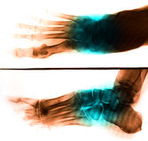 X-Ray scan human for foot Stock Photo