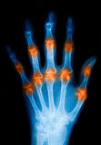 X-Ray scan human for hand Royalty Free Stock Photos