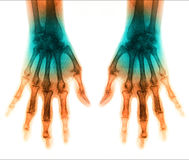 X-Ray scan human for hand Stock Images
