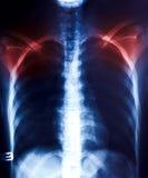 X-Ray scan human Royalty Free Stock Photos