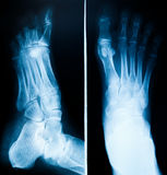 X-Ray scan human Stock Photo