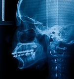 X-Ray scan human Royalty Free Stock Image