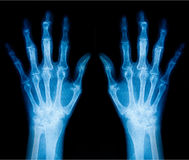X-Ray scan human Royalty Free Stock Photography