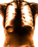 X-Ray scan human Stock Photos