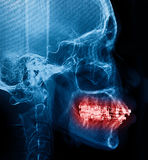 X-Ray scan human for teeth Stock Photo