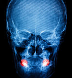 X-Ray scan human for teeth Stock Photography
