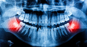 X-Ray scan human for teeth Stock Image