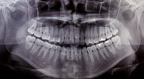 X-Ray scan human for teeth Stock Photo