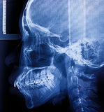 X-Ray scan human for teeth Royalty Free Stock Photography