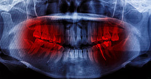 X-Ray scan human for teeth Stock Images