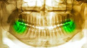 X-Ray scan human for teeth Stock Photos