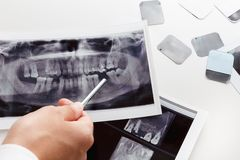 X-ray scan of humans teeth Royalty Free Stock Photos