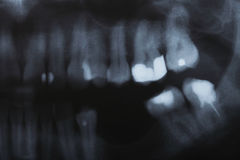 X-ray scan of humans teeth Stock Images