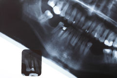 X-ray scan of humans teeth Royalty Free Stock Image