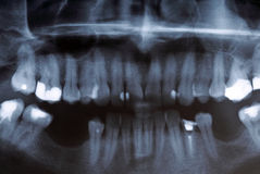 X-ray scan of humans teeth Royalty Free Stock Images