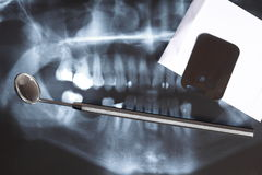 X-ray scan of humans teeth Royalty Free Stock Photo