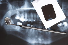 X-ray scan of humans teeth Stock Photography