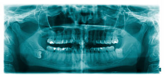 X-ray. Scan of the mandibular teeth. Panoramic negative image of the face of a young adult woman Royalty Free Stock Image