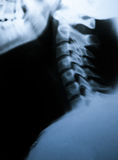 X-ray scan of neck. Side view Royalty Free Stock Photo