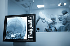 X-ray scan of the patients brain during surgery.  Stock Photos
