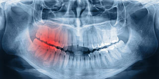 X-ray scan of teeth Royalty Free Stock Photos