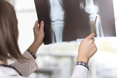 X-ray scan. Young female doctor looking at the x-ray picture of knee injury in a hospital stock photos