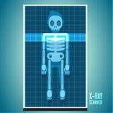 X-ray scanning on human body. skeleton -  Stock Photography