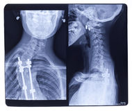 Free X-ray, Scoliosis Royalty Free Stock Images - 33910609
