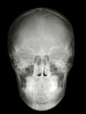 X-ray scull front profile Stock Photos