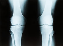 X-ray of a senior male right and left knee. Showing tibia and fibula bones of both legs royalty free stock image