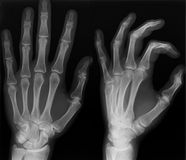 X-ray shot. Left hand x-ray shoot in two versions Stock Image