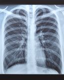 X-ray shot of a man`s lungs. X-ray shot of a man`s lungs without changes Stock Photography