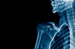 Shoulder x-ray and part of skull. X-ray shouder and part of skull with banner design stock photos