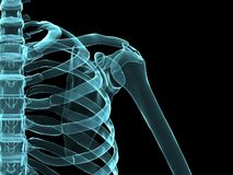X-ray shoulder Royalty Free Stock Photo