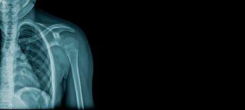 X-ray shoulder banner vector illustration
