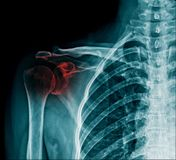 X-ray shoulder fracture in blue tone royalty free illustration