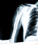 X-ray of shoulder. X-ray image of human shoulder Royalty Free Stock Images