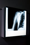 X-ray of shoulder. X-ray image of human shoulder Royalty Free Stock Photography