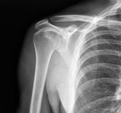 X-ray of shoulder joint Stock Image