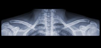 X-ray of a shoulder panorama Royalty Free Stock Images